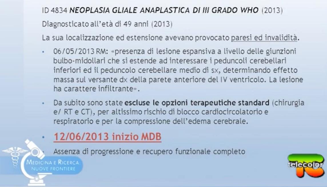 Neoplasia Gliale Anaplastica di Grado III° trattata solo ed esclusivamente con Metodo Di Bella (no chemioterapia, no radioterapia, no intervento chirurgico).